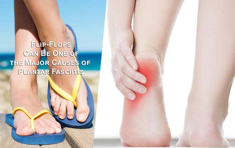 Learn How Flip-Flops Can Be One of the Major Causes of Plantar Fasciitis
