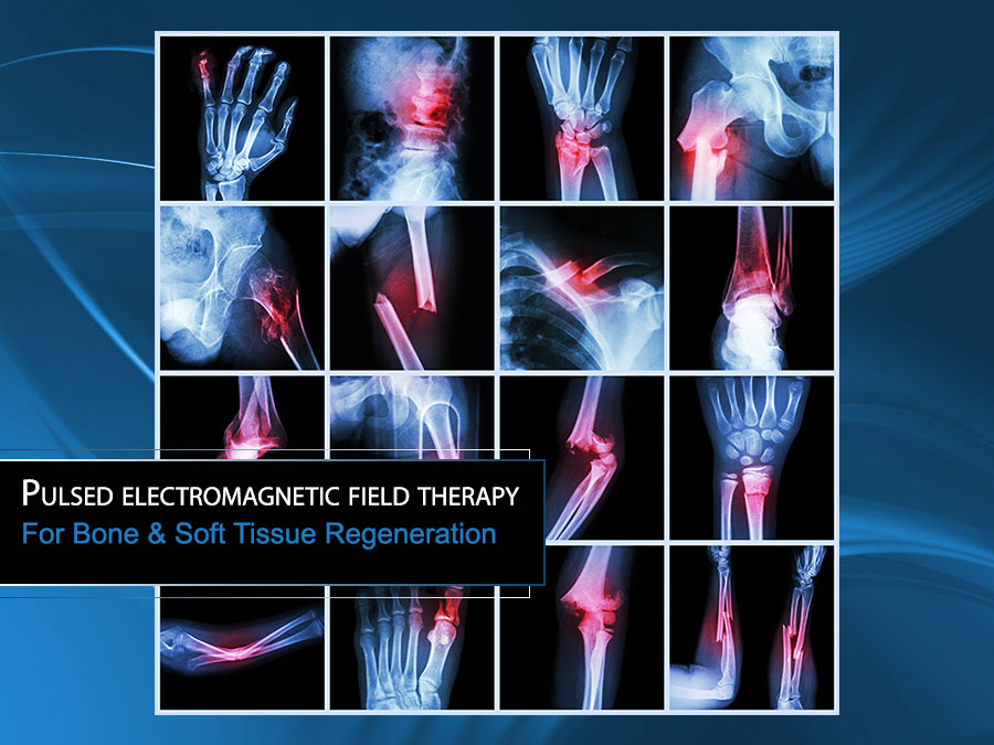 Learn how PEMF therapy works to repair bone damage and soft